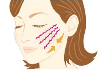 美容新手段 PPDO蛋白线面部提升悬吊术