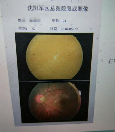 小晴的眼底图像,明显被玻尿酸覆盖