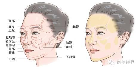 面部哪些部位最显老?如何抗衰?