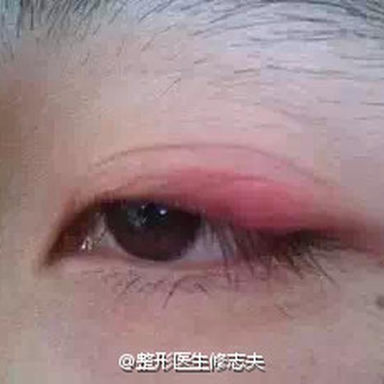 眼皮发炎-双眼皮贴还贴不贴 双眼皮贴的危害有哪些