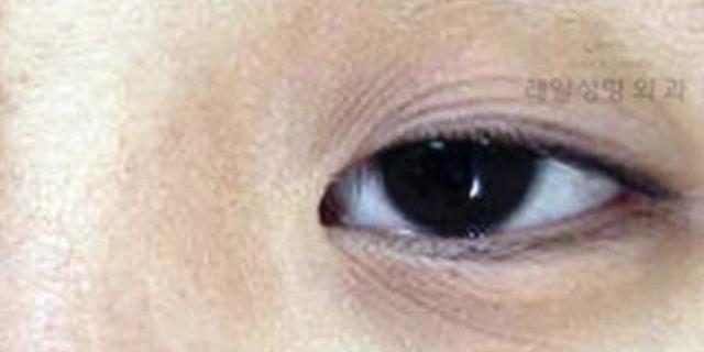 眼皮松弛了-双眼皮贴还贴不贴 双眼皮贴的危害有哪些