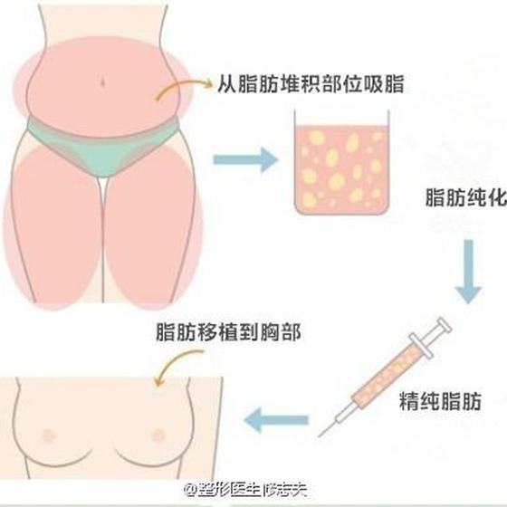 精纯脂肪丰胸手术过程