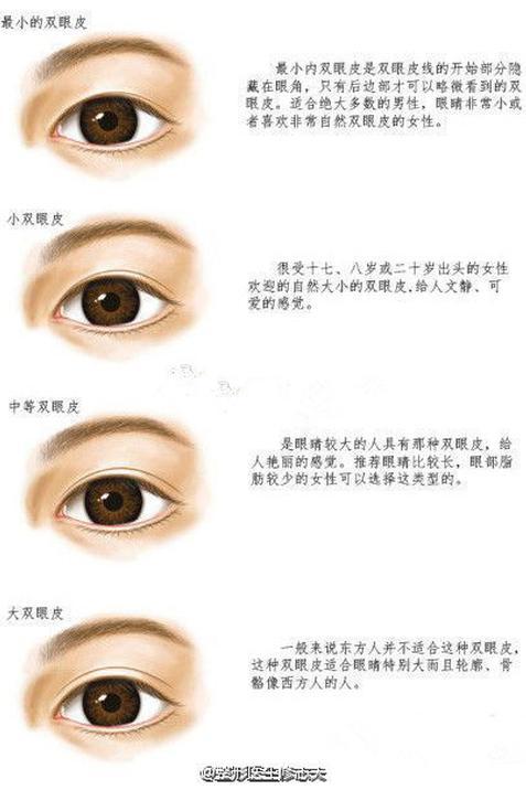 双眼皮术后为什么显得假?