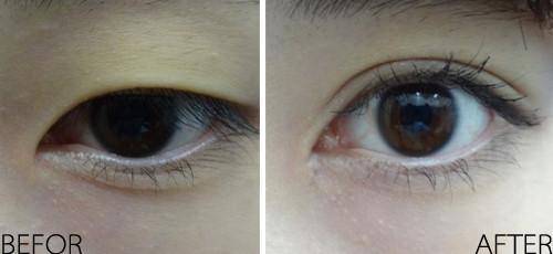 整形科普 双眼皮开眼角手术如何避免疤痕增生
