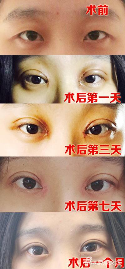 看完【双眼皮手术+恢复】30天全程记录
