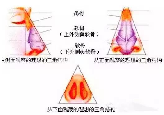 鼻部怎样注射更好,有哪些禁忌?   鼻部注射重点关注鼻根,软骨鼻背,鼻尖,鼻小柱这四个部位。鼻部的皮肤个体差异甚大,同一个人鼻部的不同区域皮肤厚度也会有所差异,鼻缝(骨与软骨交界处)较薄,在鼻部与鼻尖处皮肤相对较厚。鼻部最需要塑形,注射完后的塑形对形态很重要。鼻部注射三步曲:   1、进针选对层次:在鼻根部选择一个注射点,约45斜角进针,要分层进行注射,首先打在骨膜层,然后在皮下鼻背筋膜上再注射一部分,这样做能确保鼻部不变宽,把鼻部支撑起来。原因是皮下层由疏松的结缔组织及脂肪小叶构成,此层次是一个腔隙