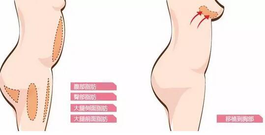 假体丰胸VS自体脂肪丰胸,该选哪一个? 假体隆