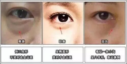 眼袋需要分型分类分别去除