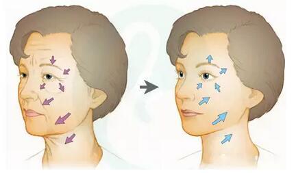 面颊组织下垂
