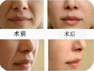 自体脂肪填充鼻唇沟