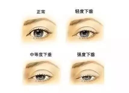 眼睛内部结构图片