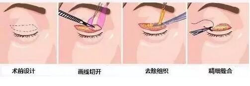 双眼皮切口矫正