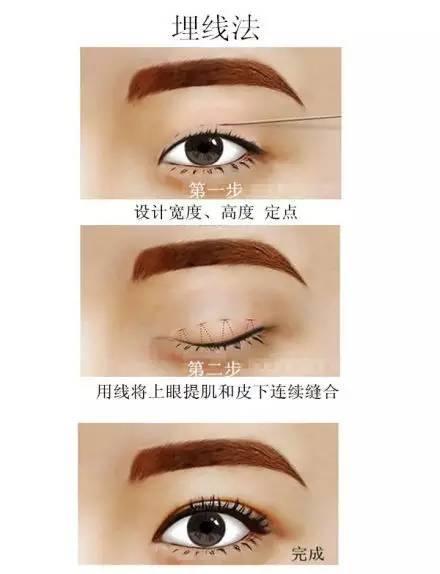 作为术前参考对比   做双眼皮的方法主要分三种:埋线,微创(韩式三点)