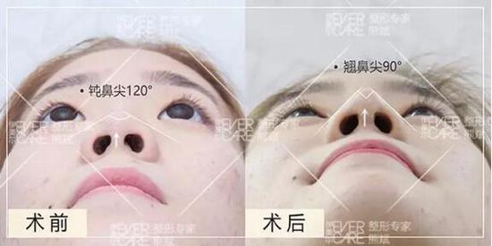 鼻部塑形有三面