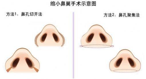 做鼻翼缩小手术安全吗   做鼻翼缩小手术,是在美女们的鼻翼部位开刀做手术,切除多余的鼻翼组织,让鼻翼变薄,之后缝合手术切口,缩小鼻翼鼻孔,让鼻子整体变得精致有型.