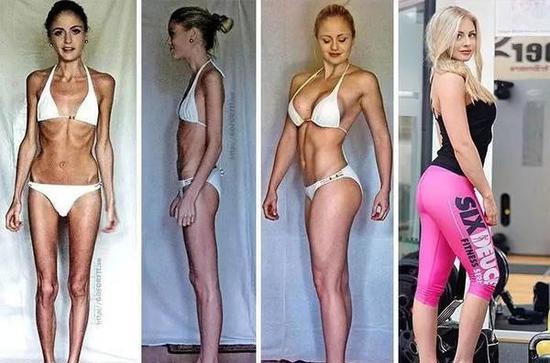 克服厌食症患者前后对比