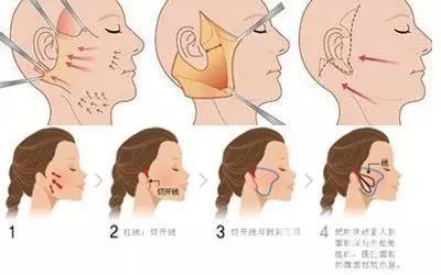 颈阔肌和smas是一个连续的解剖单位……   3,深层和复合面部提升术