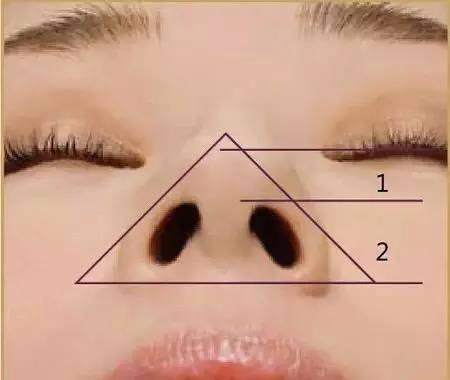 标准鼻小柱