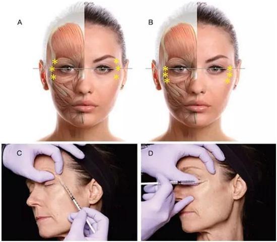 注射肉毒素眼部除皱位置示意图