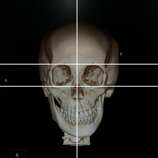 环亚娱乐iOSLet's整事儿对话王杭教授:大小脸究竟有哪些成因?