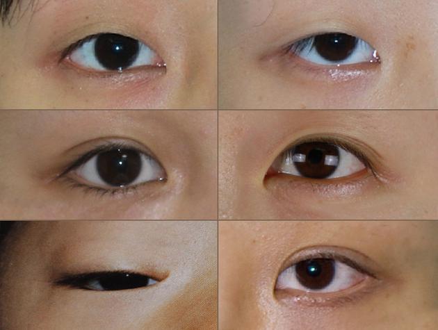 内眼角分型分度