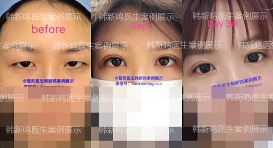 双眼皮手术前后效果