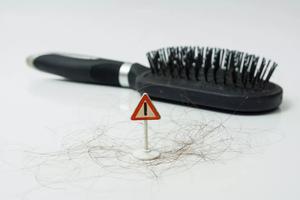 20多岁就迎来脱发?我护发的秘密武器是它