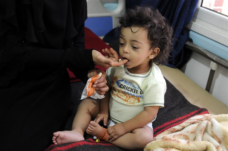 A woman feeds her cholera-infected child at a hospital in Sanaa, Yemen, on July 11, 2017. Cholera disease has infected more than 300,000 people in war-torn Yemen since late April, the international Committee of the Red Cross (ICRC) said on Monday. (Xinhua/Mohammed Mohammed)