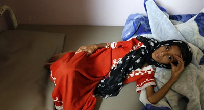Hunger kills Yemen's children in silence, no one hears