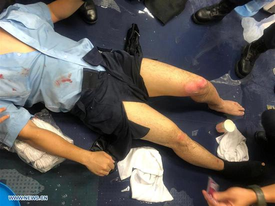 Photo taken on Aug. 11, 2019 shows an injured Hong Kong police officer. One police officer was seriously injured as gasoline bombs were thrown at police officers at multiple locations in Hong Kong on Sunday night. (Xinhua)