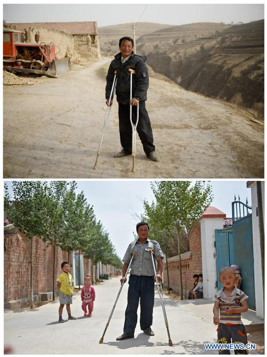 TOP: Zhang Junming walks on the dry tableland of Hongbaiyang Township, Pengyang County, Guyuan, northwest China's Ningxia Hui Autonomous Region, June 15, 2013; BOTTOM: Zhang Junming takes a walk at the Binhe Jiayuan relocation site where his family moved in Yinchuan, northwest China's Ningxia Hui Autonomous Region, June 22, 2015. Zhang Junming, 55, once lived in Hongbaiyang Township, an economic backwater in southern Ningxia. When he was young, Zhang had been severely injured in an accident, and hence suffered from leg disabilities that prevented him from seeking job opportunities in the big cities. So he and his family had to scrape a living out of poor yields on the barren farmland. The quality of life was exacerbated by lack of drinking water and poor traffic condition. Such difficult scenario came to a turning point in 2013, when the Zhang family moved out of Hongbaiyang under a government-backed ecological poverty-relief relocation scheme. The relocation site they moved into has paved roads, sound infrastructure and a slew of support policies, which rekindled Zhang's hope for the future. Eight years since the relocation, huge changes have taken place in the life of the Zhang family. At present, Zhang's two sons work in the regional capital Yinchuan, whereas his daughter-in-law is employed in a textile factory nearby. Meanwhile, both Zhang and his wife earn from job posts with social sponsorship. (Xinhua/Wang Peng)