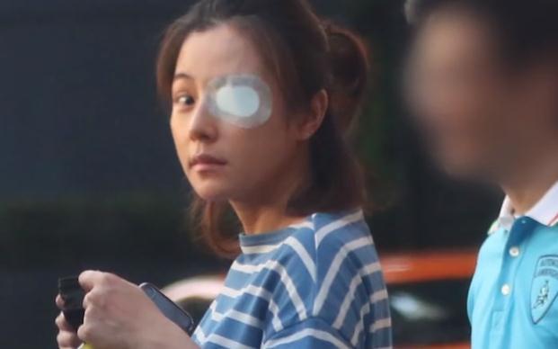 陈怡蓉挺巨大孕肚陪老公试车 左眼贴着纱布疑似受伤