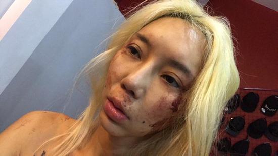 林云这几年来不断被暴打,她透露无法报警是因为男友在警界颇有人脉