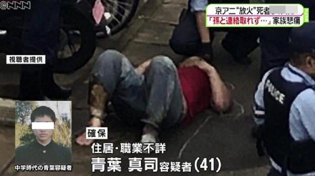 京阿尼纵火嫌犯治疗费高达2亿日元