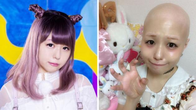 15岁女偶像患全身脱毛怪病