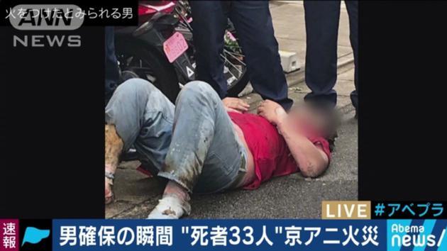 京阿尼纵火案嫌疑人照片曝光 送院后生命垂危