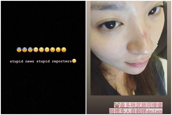 """28岁港星岑宁童被传""""试图轻生"""" 送医一天后发声"""