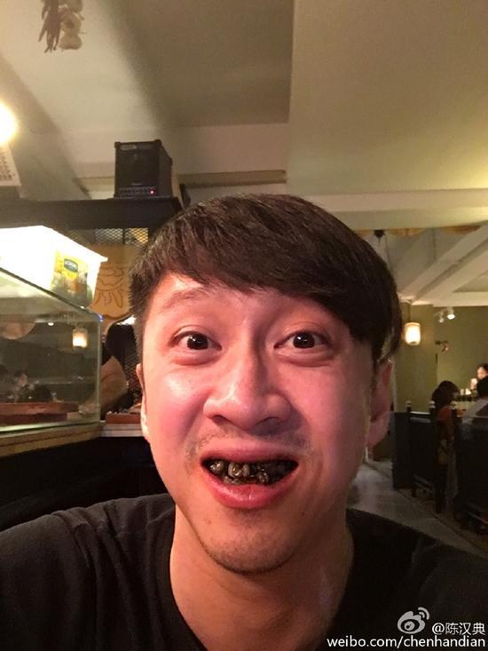 陈汉典洗牙自黑照超丑