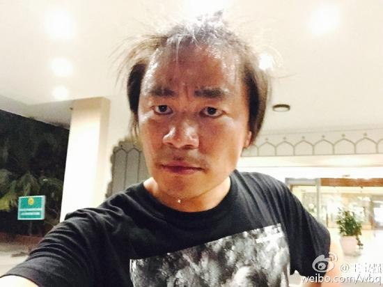 王宝强头发稀疏