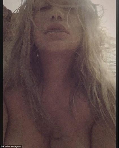 美国歌手凯莎自曝忧郁症 曾遭制作人性侵