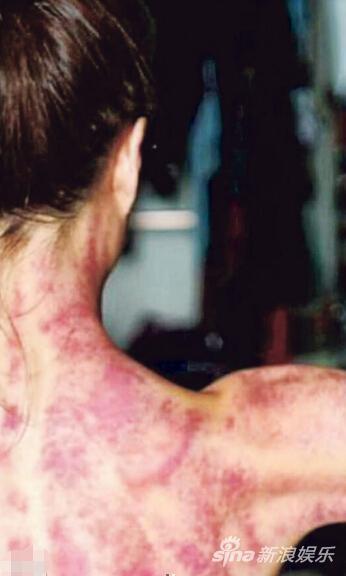 郑秀文刮痧后全身都是紫红色。(网上图片)