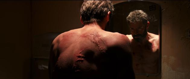 金刚狼背后狰狞的伤疤