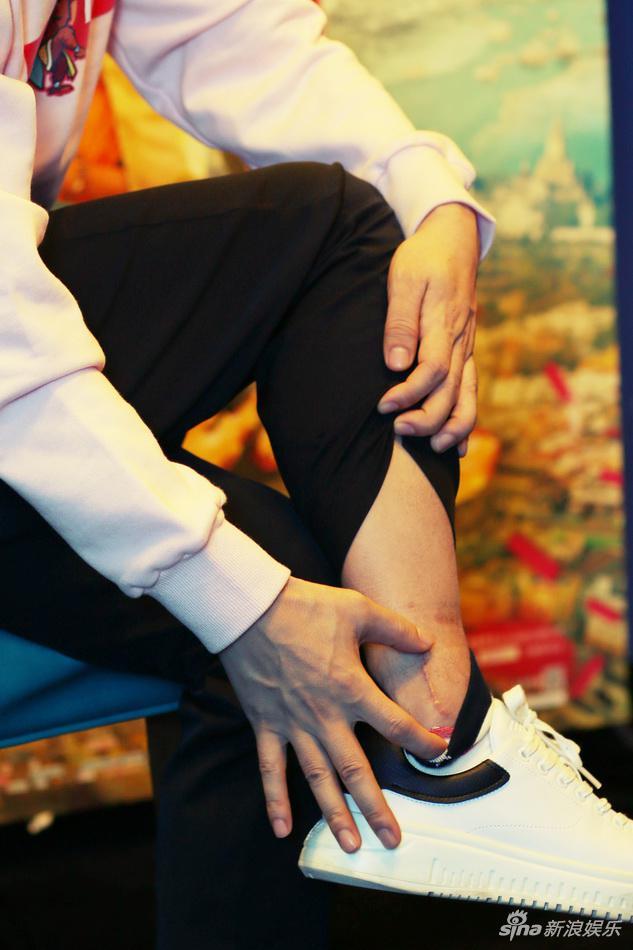 王宝强向新浪娱乐展示伤口。
