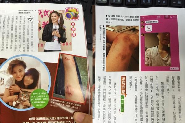 昆凌前助理安琪出示伤照(右),F小姐也控诉遭她打到瘀青(左)