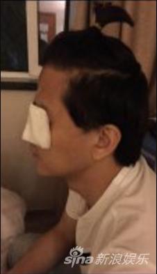 张柏芝旧爱陈晓东患急性青光眼 紧急入院治疗