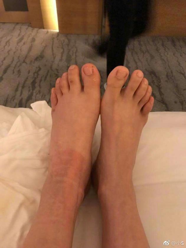 小s录影扑街左脚肿胀 网友:全程看你的胖脚