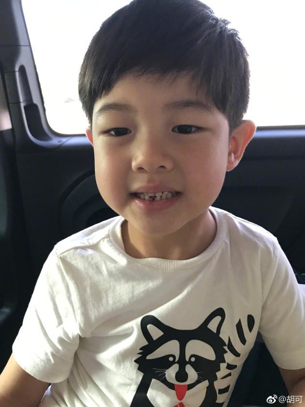 """安吉换牙变""""豁牙吉"""" 胡可:可还帅吗?"""