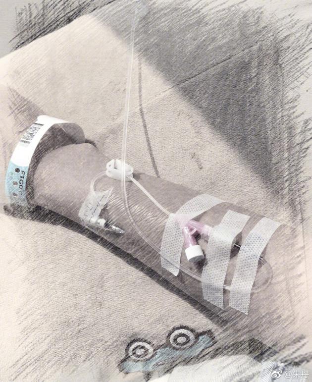 朱丹微博晒怀孕照片