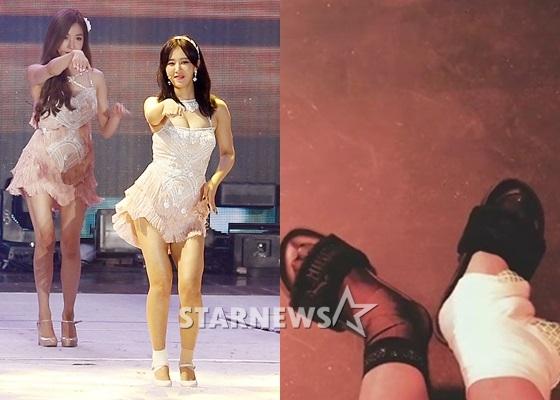 少女时代权侑莉右脚腕受伤 SM公司表示不影响回归