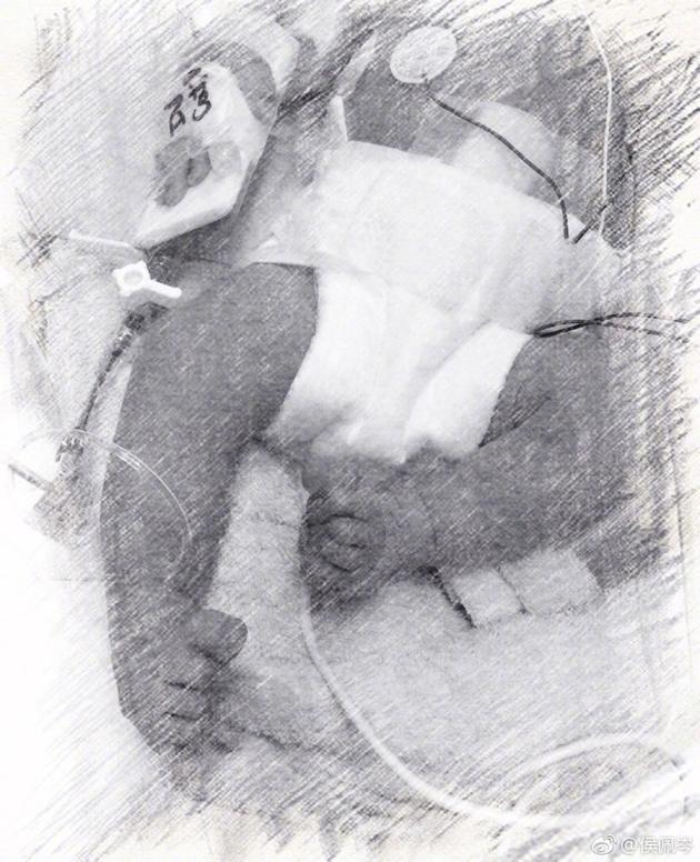 侯佩岑宣布已产下二胎 因健康问题剖腹早产已出院